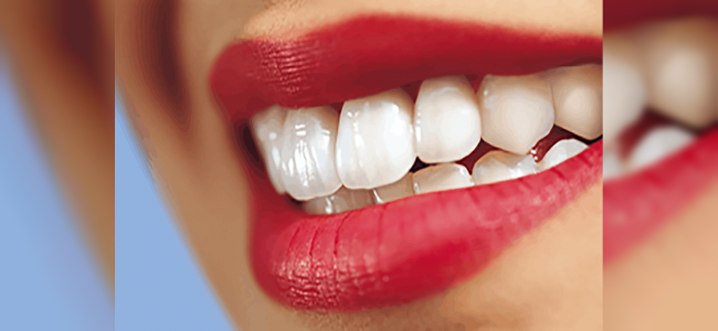 En Yeni Diş Kaplama Teknikleri