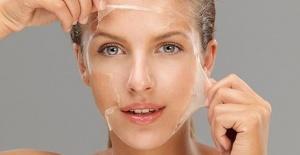 Kimyasal Peeling Leke Tedavisi