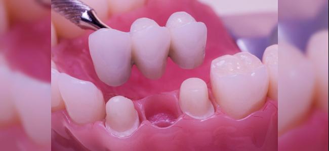 Profesyonel Porselen Diş Kaplama Tedavisi