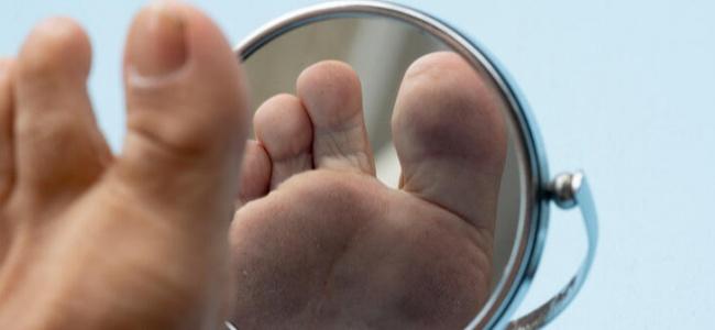Diyabetik Yara Ayağınızdan Etmesin