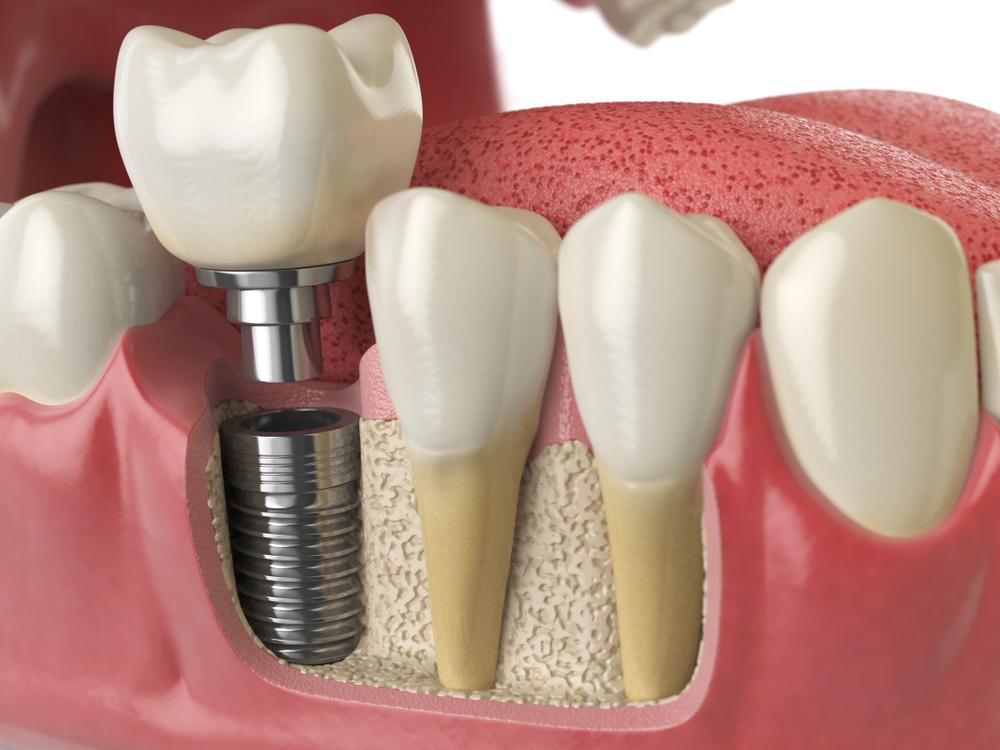 Eryaman Diş Hastanesi İmplant Tedavisi