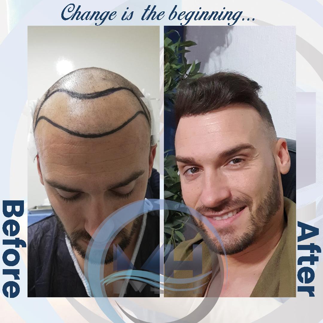 Miracle Hair Clinic Saglık Turizm