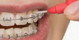 Ortodontik Tedavi Süreçleri