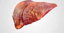 Karaciğerdeki damar tümörüne dikkat